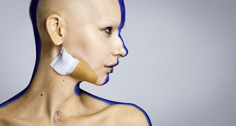 1_model who lost her jaw to cancer