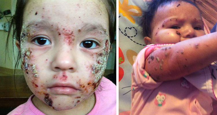 1_outbreak of skin lesions in First Nations community