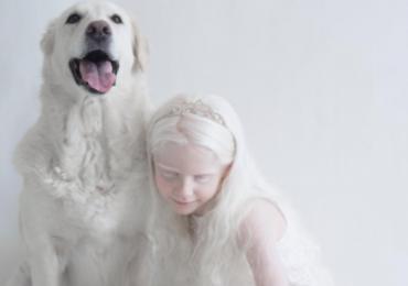 albino people