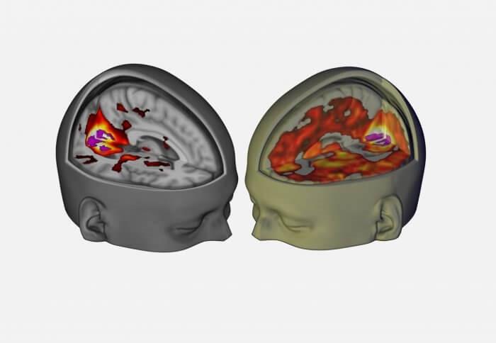 Moderno psicodélico de la ciencia es la reactivación perdido la investigación y la búsqueda de nuevas curas - La Cebra a Cuadros (blog) 1